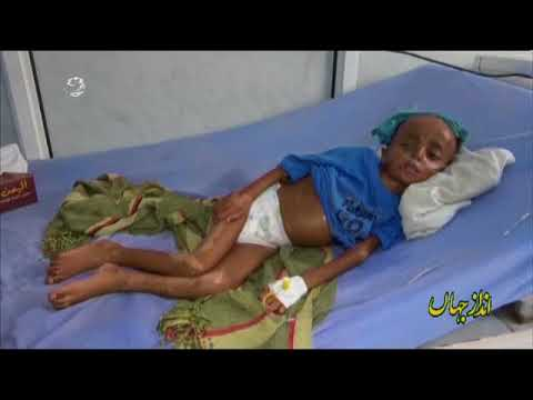 [13Aug2018]  یمنی بچوں پر سعودی اتحاد کی بمباری- Urdu