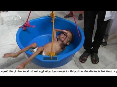 [14Sep2018] یمن کے جوابی حملے - Urdu